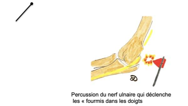 syndrome tinel compression du nerf ulnaire au coude compression nerf cubital douleur epaule coude epaule chirurgien orthopedique paris chirurgien epaule chirurgien coude